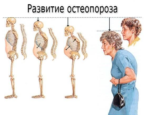 Мраморная болезнь у детей (фото)