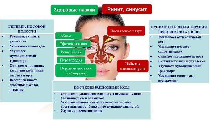 Лечение синусита