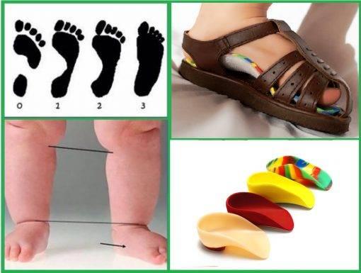 Патология стоп у детей (особенности лечения плоскостопия)