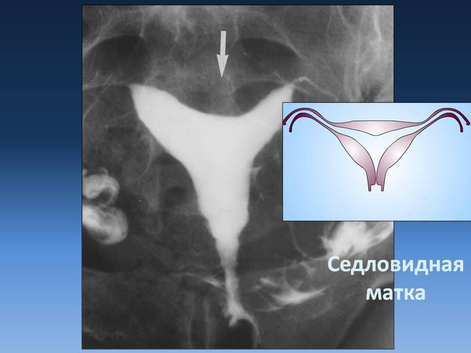 Седловидная матка | eurolab | гинекология