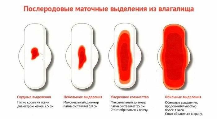 Дисменорея: боли при месячных — это болезнь! * клиника диана в санкт-петербурге