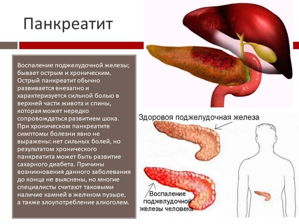 Хронический панкреатит у детей - симптомы болезни, профилактика и лечение хронического панкреатита у детей, причины заболевания и его диагностика на eurolab