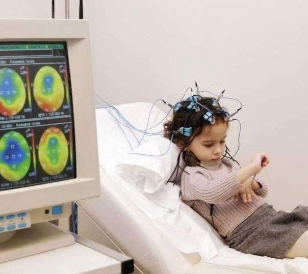 ЭЭГ головного мозга ребенку