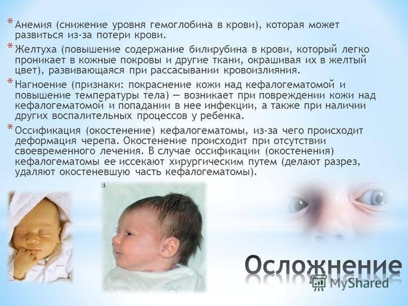 Желтуха новорожденных - доказательная медицина для всех