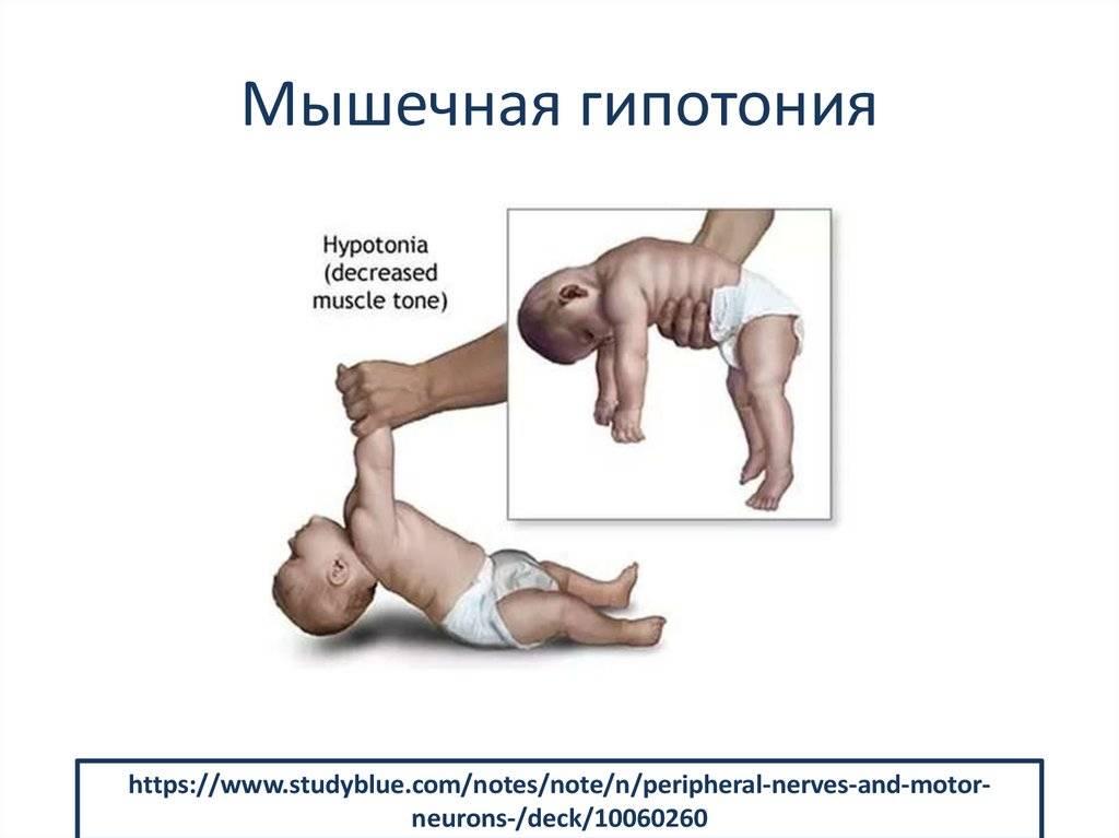 Гипотонус мышц у детей