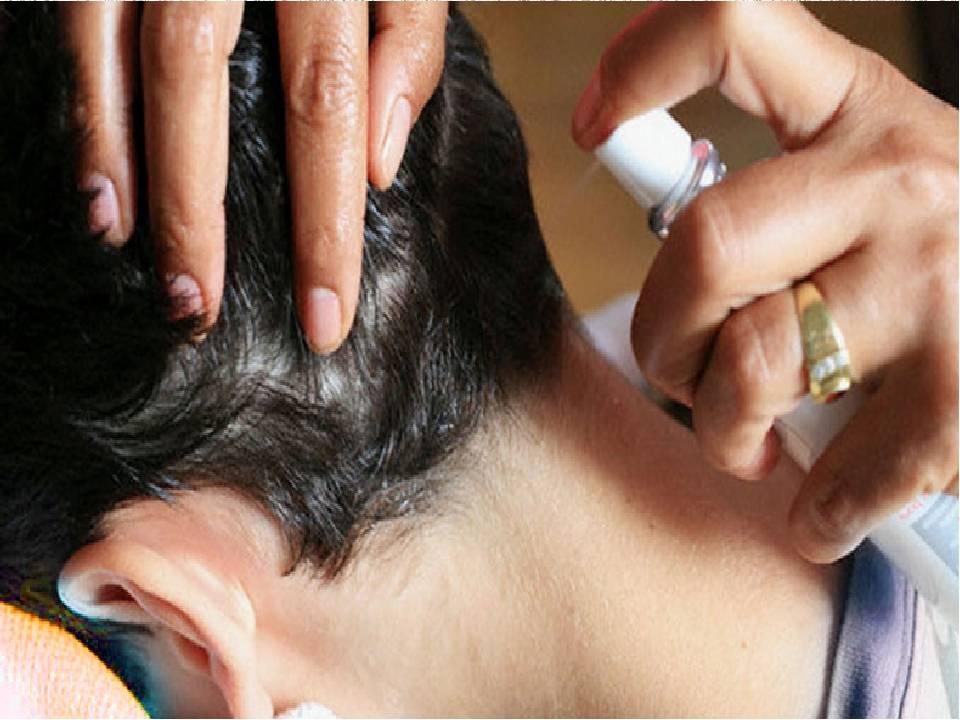 Как лечить педикулез в домашних условиях — эффективные способы лечения головных вшей