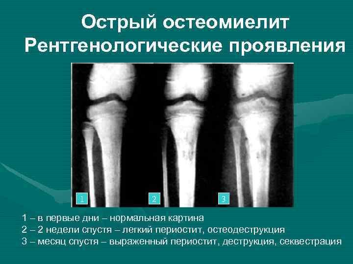 Хронический  остеомиелит - симптомы болезни, профилактика и лечение хронического  остеомиелита, причины заболевания и его диагностика на eurolab