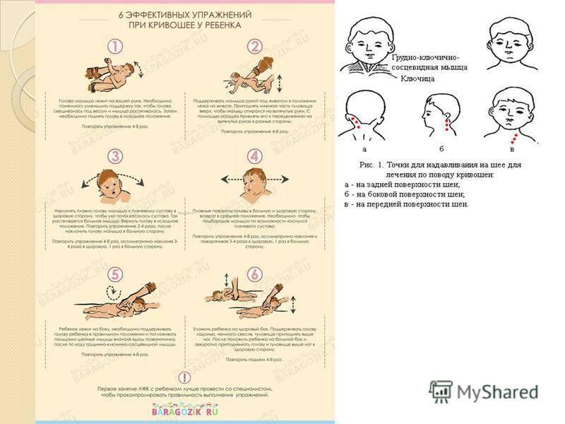 Кривошея у новорожденных: признаки, фото, массаж и лечение (комаровский)