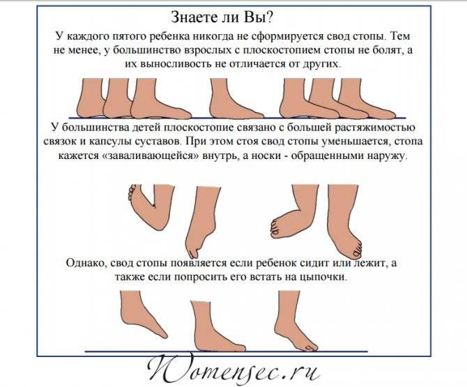Плоскостопие. лечение деформаций и заболеваний стоп у взрослых и детей