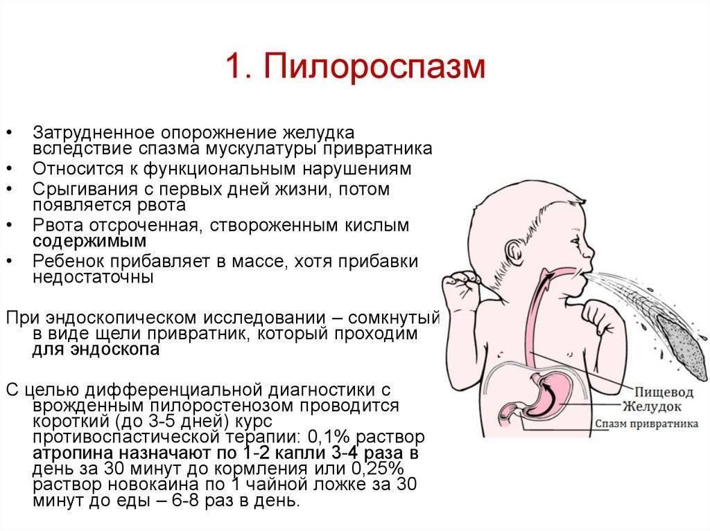 Пилоростеноз — большая медицинская энциклопедия