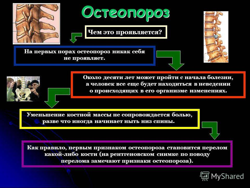 Методы выявления остеопороза?