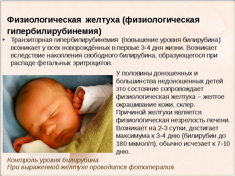 Хрупкая жизнь: репортаж из отделения, где выхаживают недоношенных детей