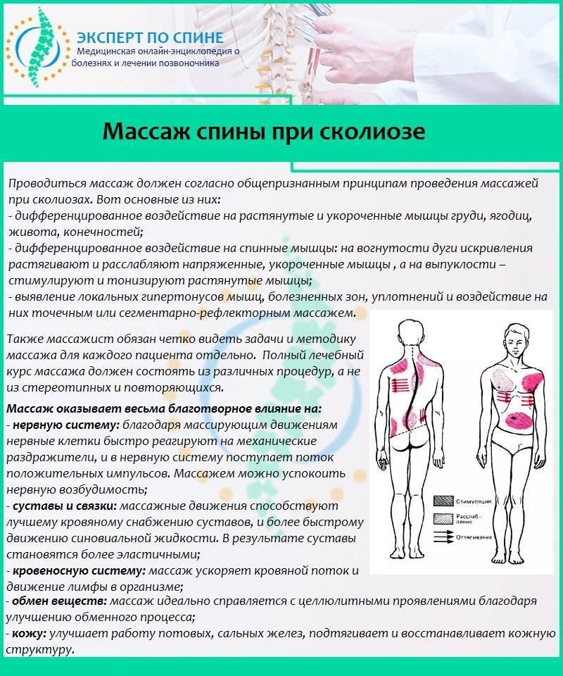 Массаж при сколиозе   лечение искривления позвоночника