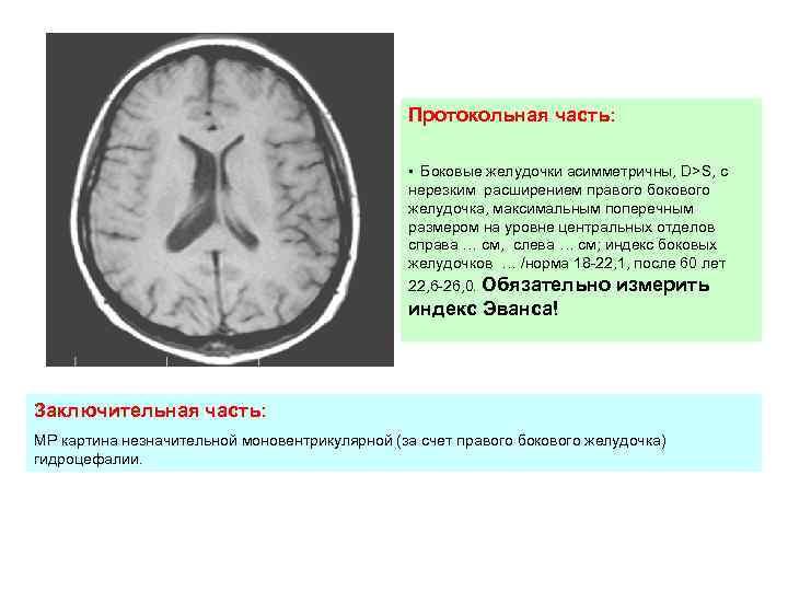 Арахноидит — большая медицинская энциклопедия