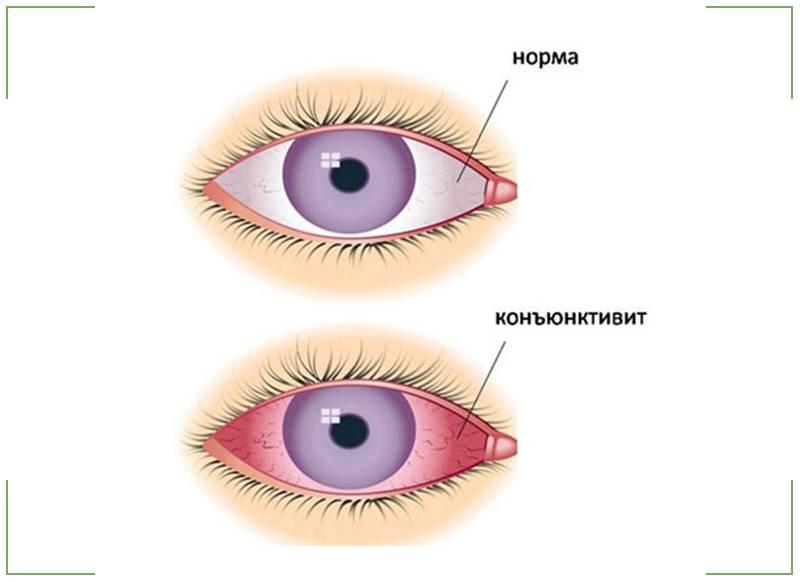 Конъюнктивит глаз при беременности, чем лечить? - детская поликлиника № 7