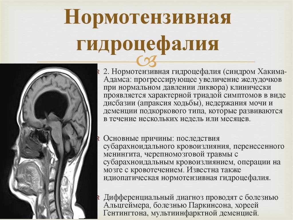 Лечение гидроцефалии у детей | москва