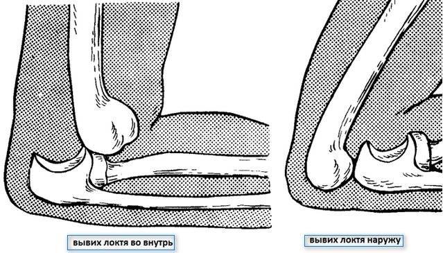 Вывихи позвонков - симптомы болезни, профилактика и лечение вывихов позвонков, причины заболевания и его диагностика на eurolab