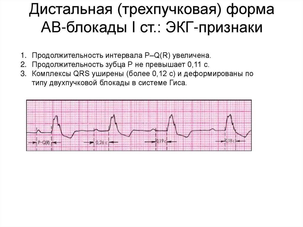 Изменения на экг при сердечных блокадах | университетская клиника