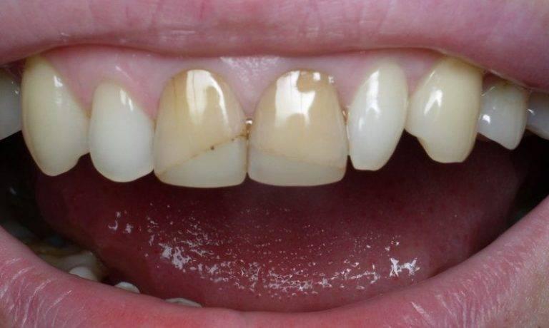 Покрытие зубов гелем, покрыть зубы гелем в стоматологическом центре, цена в балашихе