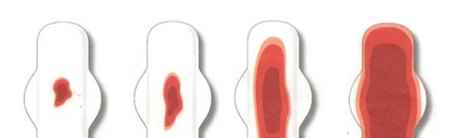 Выделения из уретры причины появления, выделения из мочеиспускательного канала у мужчин и женщин.