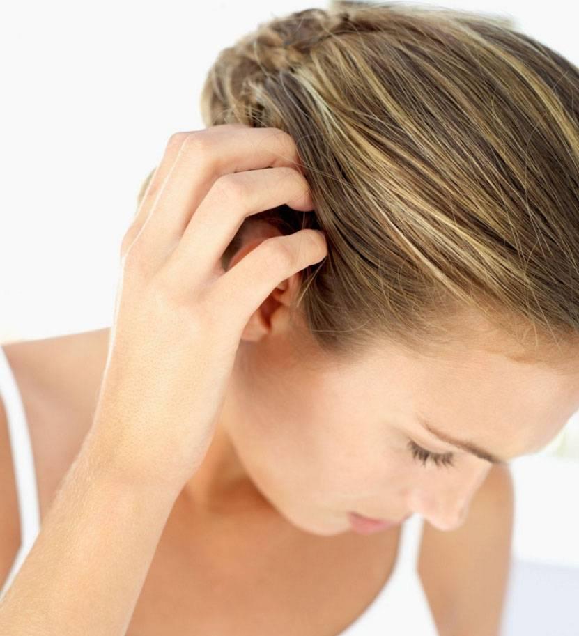 Как избавиться от перхоти на голове навсегда: что помогает и как вывести в домашних условиях