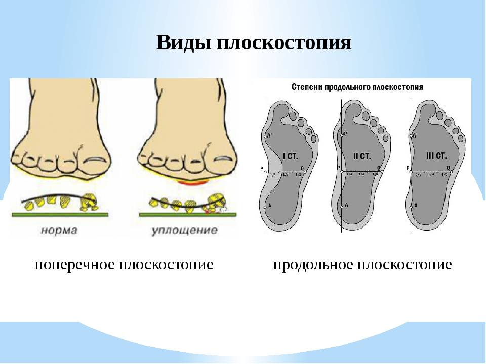 Продольное и поперечное плоскостопие - лечение, симптомы, причины, диагностика | центр дикуля