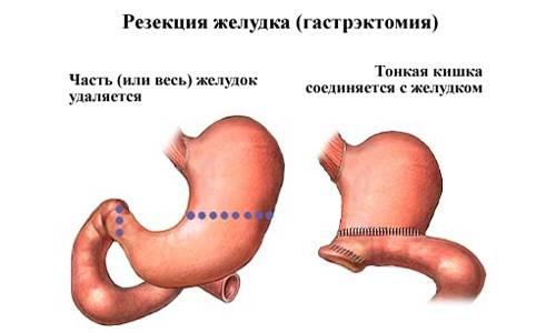Поллиноз: симптомы, диагностика, причины, лечение
