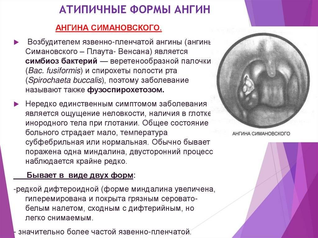 Лакунарная ангина