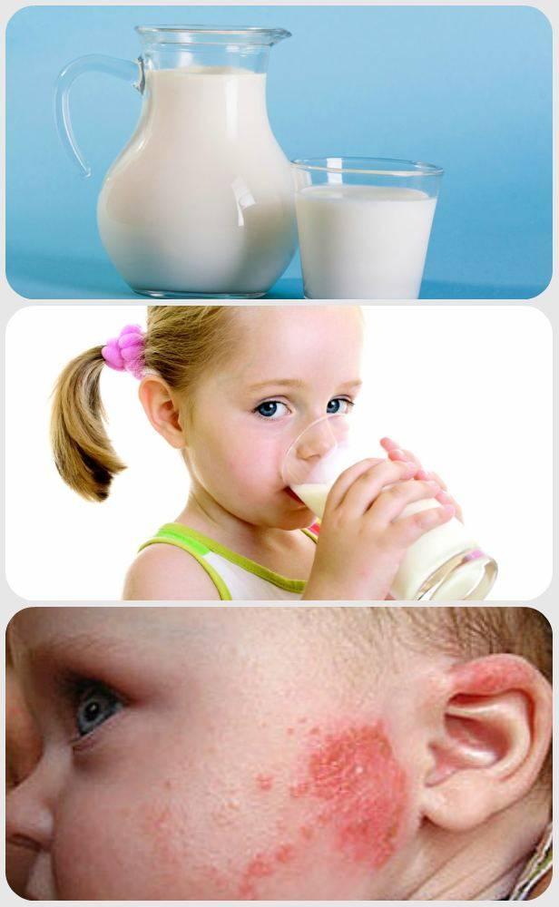 Аллергия на творог у грудничка