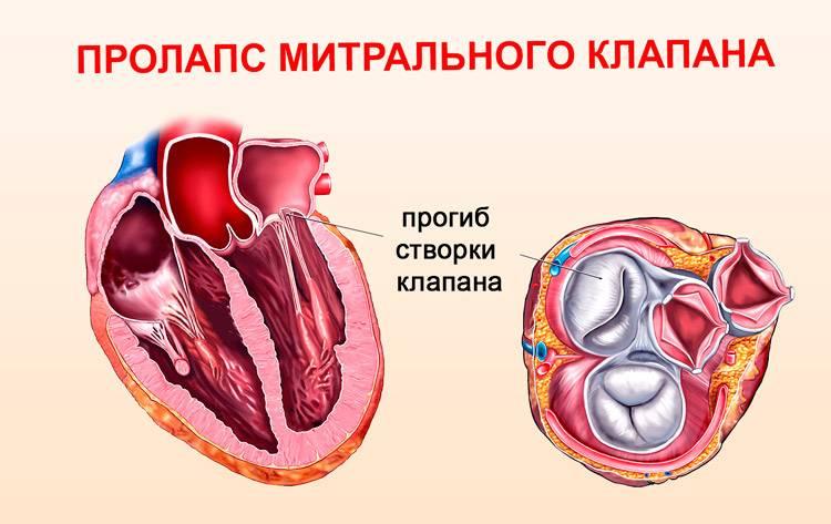 Патологии клапанов сердца!
