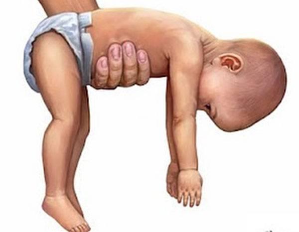 Мышечная гипотония: причины, симптомы, лечение | компетентно о здоровье на ilive