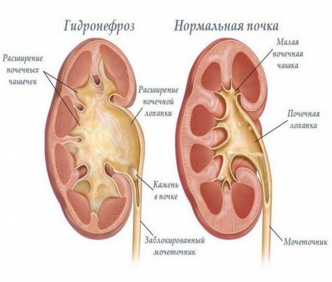 Гидронефроз — почечная недостаточность   университетская клиника