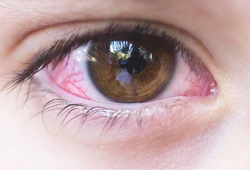 Причины, почему гноятся глаза у ребенка — возможные заболевания