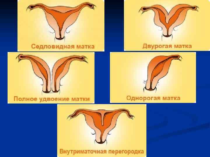 Седловидная матка - причины, признаки, симптомы и лечение