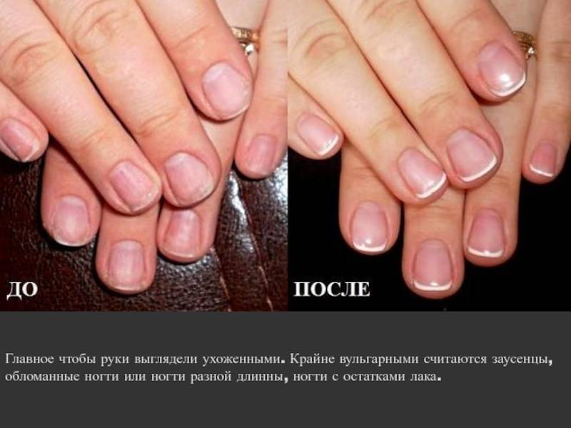 Псориаз ногтей: как привести ногти в порядок?
