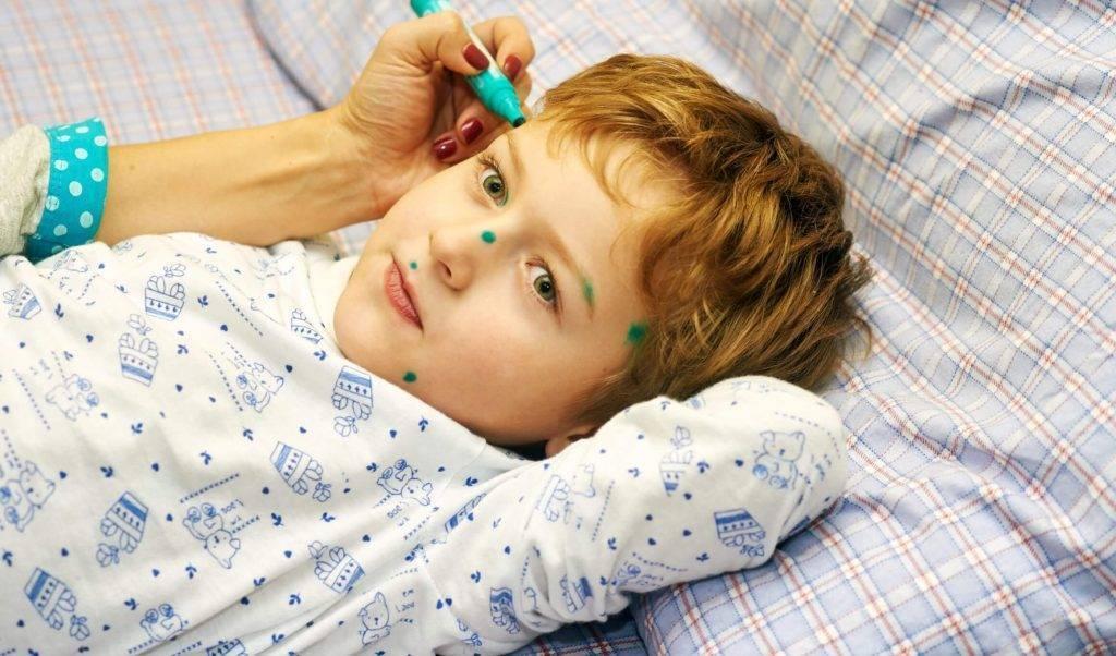 Ветрянка (ветряная оспа): симптомы и лечение – напоправку – напоправку