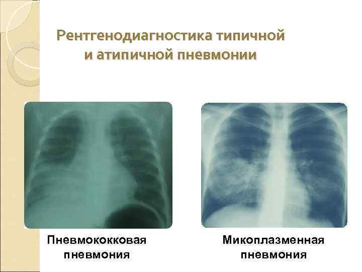 Пневмония у детей: как распознать болезнь?