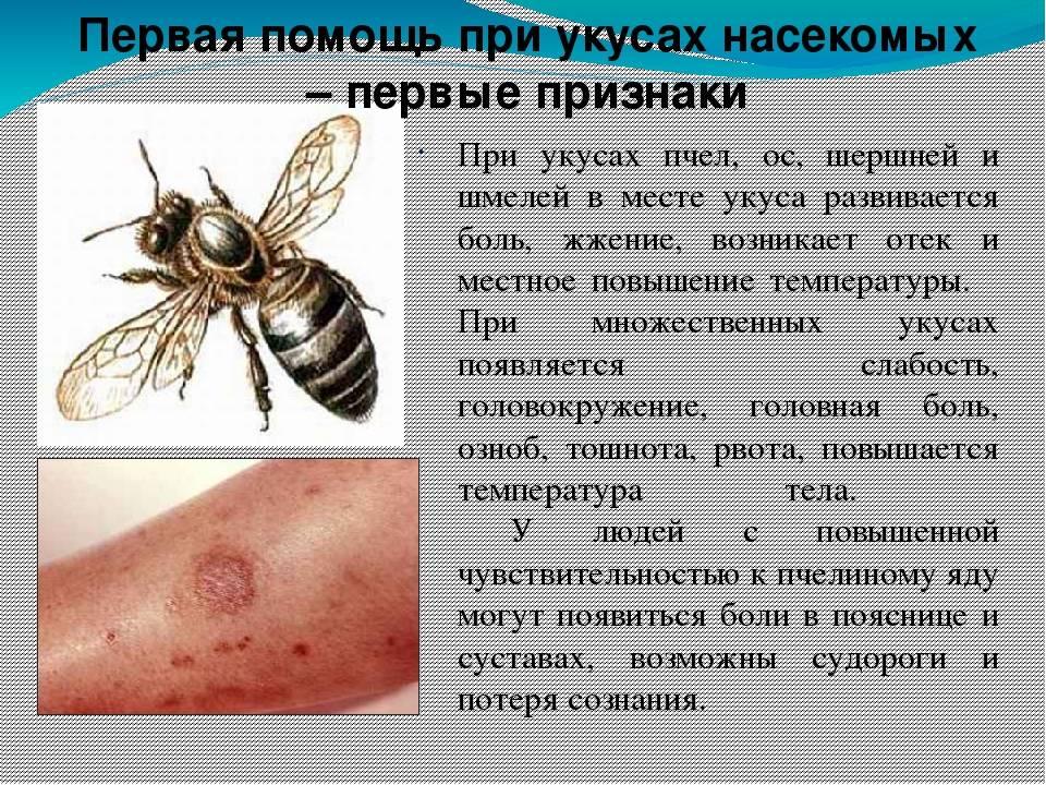 Что делать, если ребенка покусали комары, мошки, осы или пчелы?