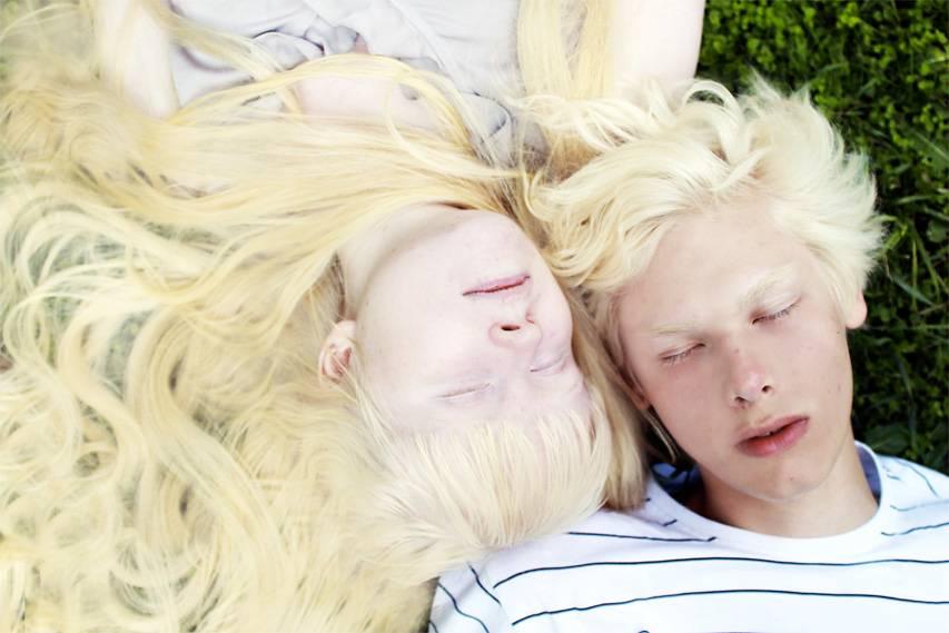 Муж альбинос. «белая ворона», или особенности здоровья и развития ребенка-альбиноса