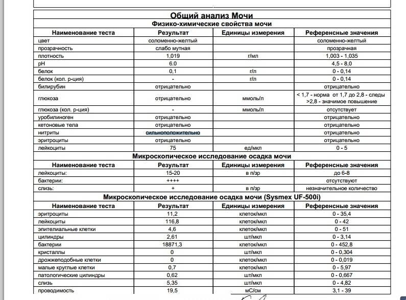 Цилиндры в моче: что такое цилиндрурия, норма и патология