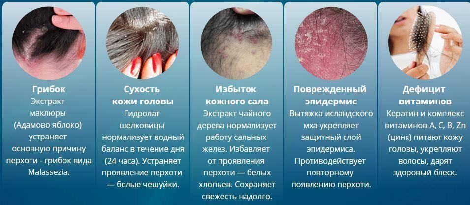 Жирная перхоть : причины, профилактика, лечение | средства для волос alerana