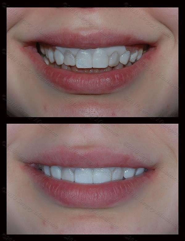 Покрытие зубов фторлаком - что это такое, цена, отзывы, фото до и после
