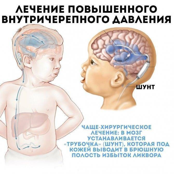 Невротические расстройства у детей и подростков - медицинский центр «эхинацея»