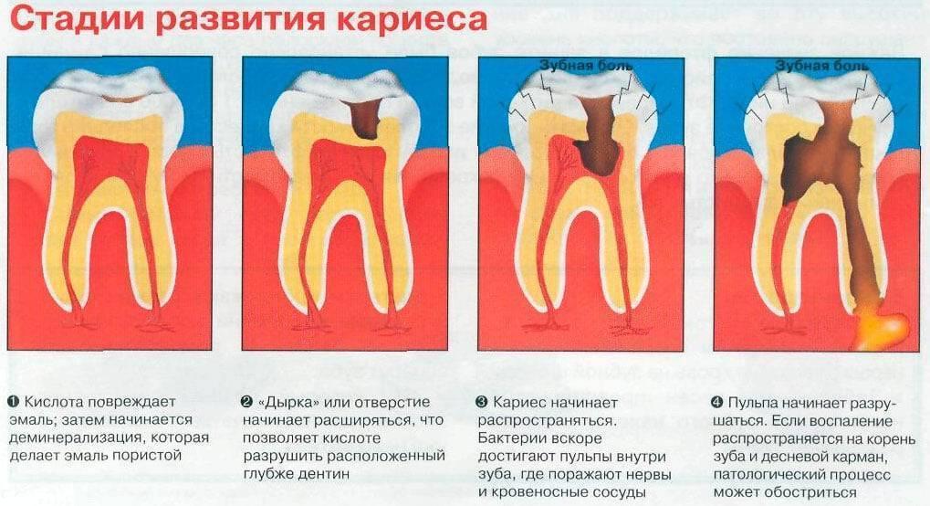 Пульпит молочных зубов, симптомы, лечение, профилактика у детей