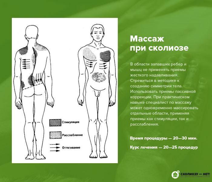 Каким образом осуществляется массаж при сколиозе?