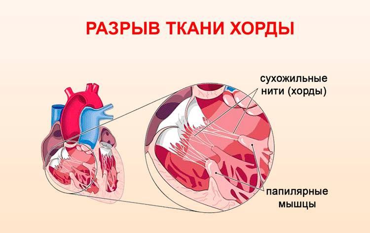 Пролапс митрального клапана, лечение в нижнем новгороде | тонус лайф