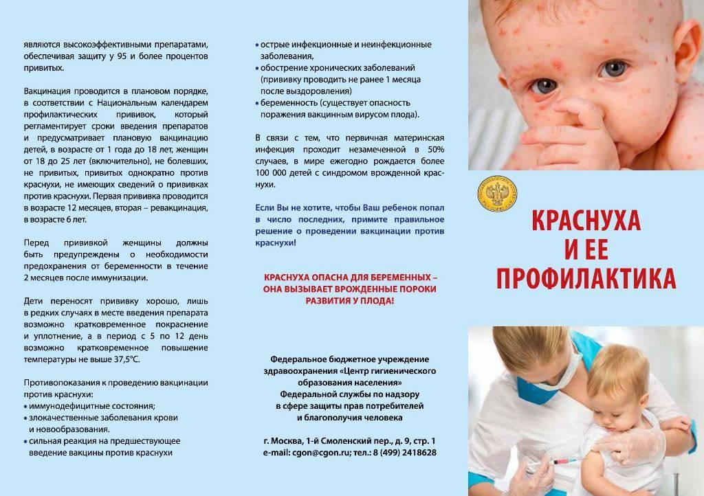 Корь. симптомы, лечение, профилактика, прививки