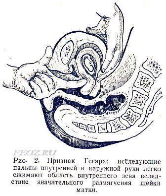 Первые признаки беременности на ранних сроках - как определить ра