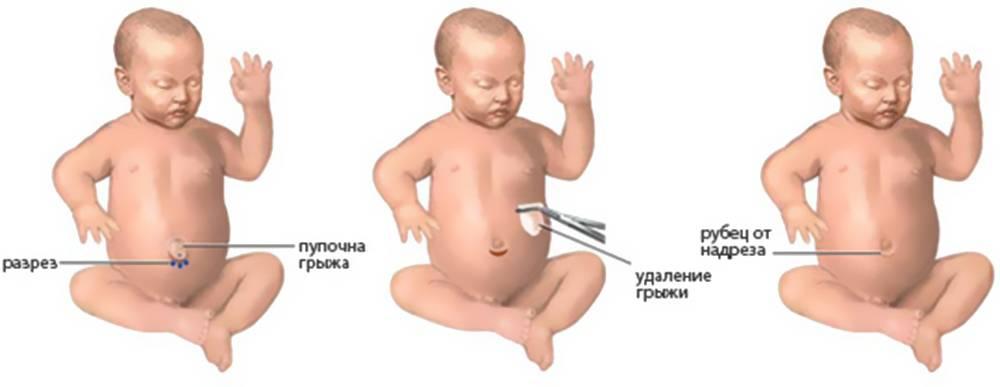 Паховая грыжа у детей — лечение, диагностика, симптомы и причины болезни   николаев в.в.
