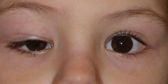 Резко опухло нижнее веко у ребенка — что делать? - энциклопедия ochkov.net